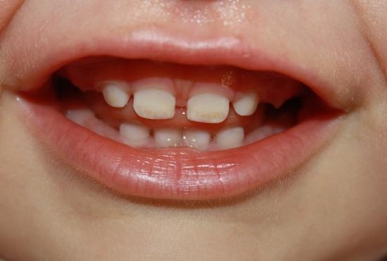 Черные молочные зубы у детей фото