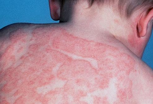 Лечебные курорты атопический дерматит